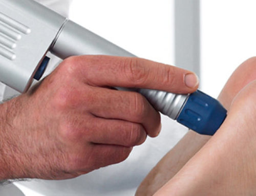 Plantar Fasciitis Treatment: EPAT Shockwave Therapy for Fast Recovery