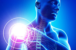 Shoulder pain from Rotator Cuff tear