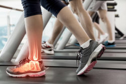 Heel Pain on the treadmill.
